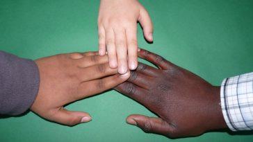 peau couleur main
