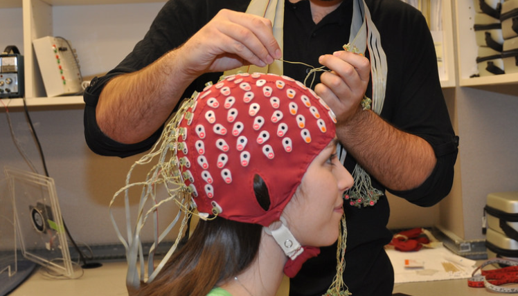 electrodes cerveau