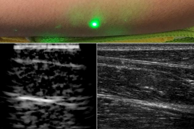 laser ultrason echographie